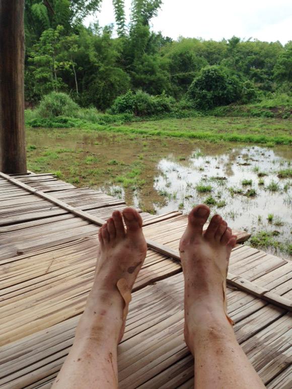 ln-vuile-voetjes